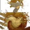 Anatomic variants of pulmonary venous ...