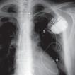 Cardiac resynchronization therapy system ...